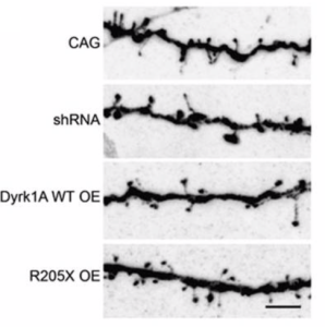 DYRK1A-Figure2